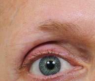 Fibromyalgi alternativ helbredelse. Fibromyalgi og tynde øjenbryn