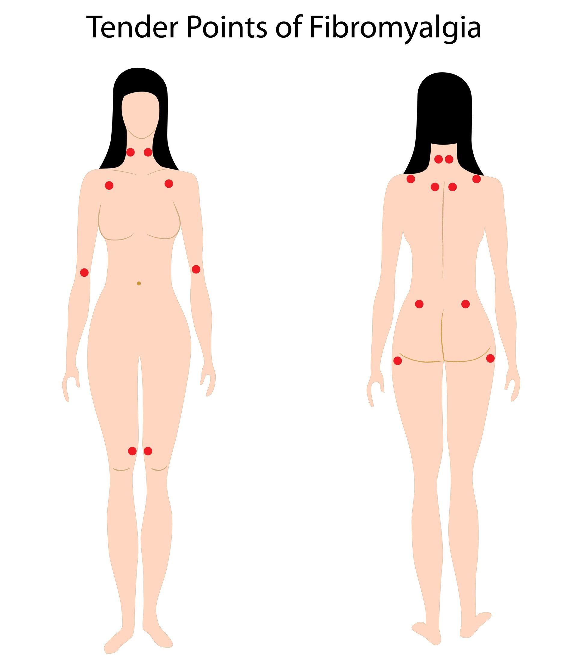 Fibromyalgi alternativ helbredelse. Fibromyalgi tender points - de 18 ømme punkter der skal undersøges i fibromyalgi