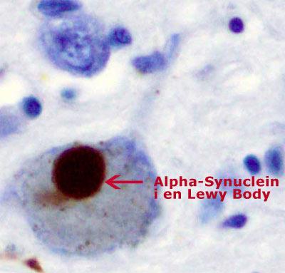 Alternativ Behandling Parkinson's  Disease hjernen Substantia nigra lewy body