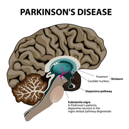 Alternativ Parkinson's Disease Behandling