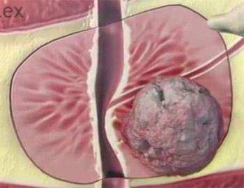 prostata kræft