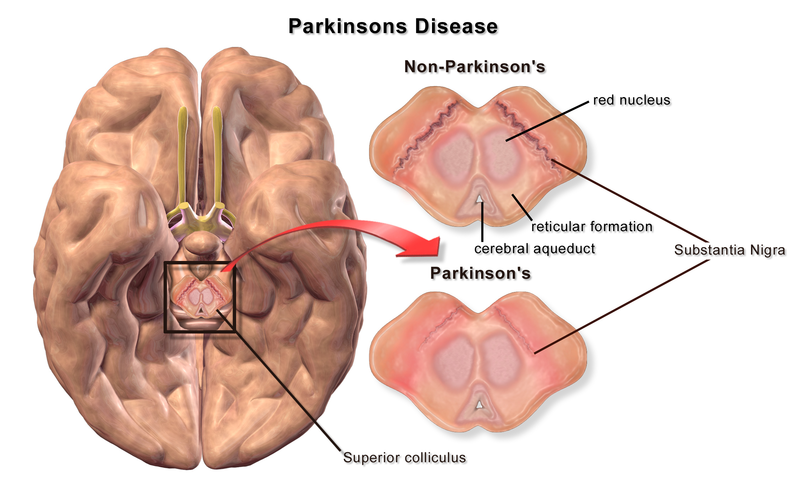 Alternativ Behandling Parkinson's  Disease hjernen Substantia nigra
