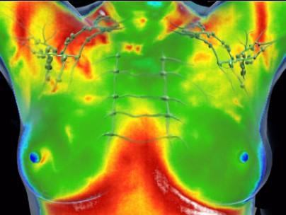 termografi optagelse af bryster